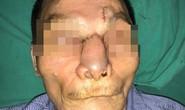 Một nam giới bị khoét sạch mũi, má vì ung thư da