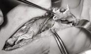 Cổ tay bầy nhầy vì chích corticoid trị hội chứng ống cổ tay