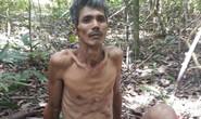 Thầy giáo đi lạc trong rừng ở Phú Quốc: Bàn chân có dấu hiệu nhiễm trùng