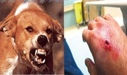 Khống chế dịch chó dại cắn người ở Cà Mau