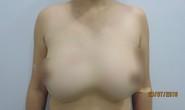 Rút cả lít silicon thông khe giữa ngực người phụ nữ