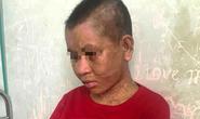 Một phụ nữ nghi bị chủ tra tấn man rợ đến thân tàn ma dại