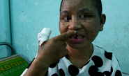 Hành trình chạy trốn khỏi địa ngục trần gian của cô gái bị tra tấn dã man