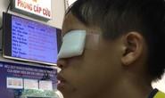 Dùng thuốc đầu que diêm làm pháo, bé trai bị hỏng mắt