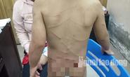 Giải cứu bé trai 3 tuổi bị cha dượng đánh dã man ở Phú Quốc