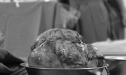 Người đàn ông mang khối u 2,5 kg ở  trung thất