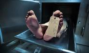"""1 người hiến tạng, 3 người nhận đều chết vì """"lây"""" ung thư vú"""