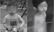 Đài Loan: Bé trai 3 tuổi bị bạo hành, bỏ đói gầy trơ xương