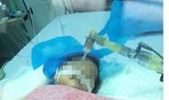 Bé gái 8 tháng tuổi nguy kịch vì điều dưỡng tiêm nhầm thuốc uống