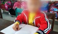 Đề nghị tạm đình chỉ công tác cô giáo tát học sinh nhập viện