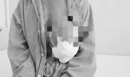 Bầu ngực suýt nổ tung sau khi đắp lá chữa u vú