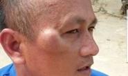 Công an cho quản lý khách sạn ở Phú Quốc nhận dạng nghi phạm đánh mình