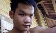 Thiếu nữ 15 tuổi nghi bị anh trai chém vào đầu, siết cổ tử vong