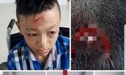 Thực hư việc trường bị tố bỏ mặc học sinh bị đánh chảy máu đầu
