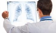 Hơn 6 triệu người mắc bệnh hen và COPD