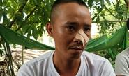 Nhóm thanh niên đến tận nhà truy sát 3 cha con: Lời kể của nạn nhân