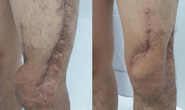 Nam sinh viên được phẫu thuật 6 lần cứu chân suýt phải cắt cụt