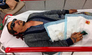 Cướp biển Johnny Depp tung ảnh thê thảm cáo buộc vợ cũ bạo hành