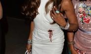 Báo đen Naomi Campbell bị chỉ trích vì áo khoe vết đạn