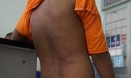 Diễn biến mới vụ 4 anh em họ ở Cà Mau nghi bị người thân bạo hành