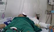 Chồng đổ xăng đốt vợ đang mang thai 7 tháng vì nghi vợ ngoại tình