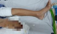 Bác sĩ xót xa xuống dao cắt bỏ chân bệnh nhi sau 4 lần phẫu thuật