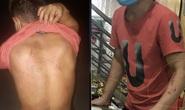 Chủ tịch Bắc Ninh yêu cầu điều tra vụ chủ quán bánh xèo Miền Trung bạo hành 2 nhân viên