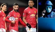 Man United khốc hại vì hacker
