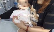 Bé gái 19 tháng tuổi liệt chi  vì bệnh tay chân miệng