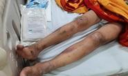 Cô gái trẻ bị gã chủ quán tra tấn dã man ở Biên Hòa - Đồng Nai