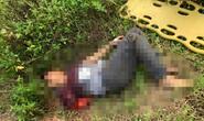 Đà Nẵng: Nam thanh niên bị tàu tông đứt lìa cánh tay