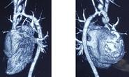 Bé trai 8 tuổi mắc bệnh hiếm gặp được thay động mạch từ người cho chết não