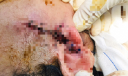 Hy hữu chai xịt hen phế quản phát nổ, 1 phụ nữ mất vành tai