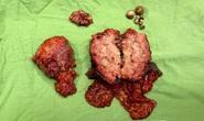 4,5 giờ căng thẳng cứu sống bệnh nhân ung thư túi mật hiếm gặp