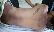Công an tỉnh Bà Rịa-Vũng Tàu thông tin vụ phạm nhân bị đánh chết trong trại giam
