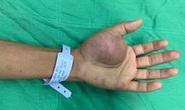 90 phút căng thẳng loại bỏ khối u đáng sợ ở lòng bàn tay bệnh nhân