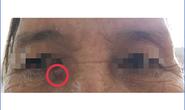 Bác sĩ đưa ra cảnh báo khi thấy khối u thịt nhỏ dưới vùng mắt