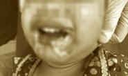 Cắn dây điện trong lúc chơi, bé gái 2 tuổi bị bỏng nặng do điện giật