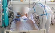 Bệnh nhân có tiền sử mắc Covid-19 tử vong sau 4 lần âm tính SARS-CoV-2