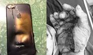 Quảng Bình: Điện thoại bị phát nổ khi vừa dùng vừa sạc pin, thanh niên bị cháy bỏng toàn thân