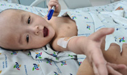 Bắt đầu cắt bột dịch chuyển xương chậu 2 bé Trúc Nhi-Diệu Nhi