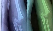 Sở GD-ĐT Hà Nội: Làm rõ vụ trẻ 5 tuổi bị ngã gãy tay từ sáng tới trưa mới đưa đi viện