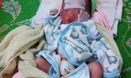Trẻ sơ sinh bị bỏ cả ngày giữa nắng nóng, da bỏng cháy