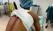 Sau hỗn chiến, nam thanh niên đến bệnh viện với cây dao đâm vào lưng