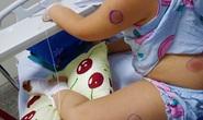 Phát hiện 1 bé gái ở Quảng Bình nhiễm vi khuẩn ăn thịt người