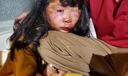 Đi học về qua lô cao su, nữ sinh lớp 6 bị kẻ lạ tấn công đến ngất