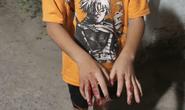 Đằng sau clip cha đánh dập tay con ở Hóc Môn