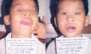 Bệnh viện Răng Hàm Mặt TPHCM: Điều trị 2 ca u sợi hàm hiếm gặp