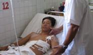 Cứu sống một trường hợp bị đa chấn thương do tai nạn lao động