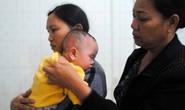 Bé gái 7 tháng tuổi bị bỏng vì côn đồ ném xăng